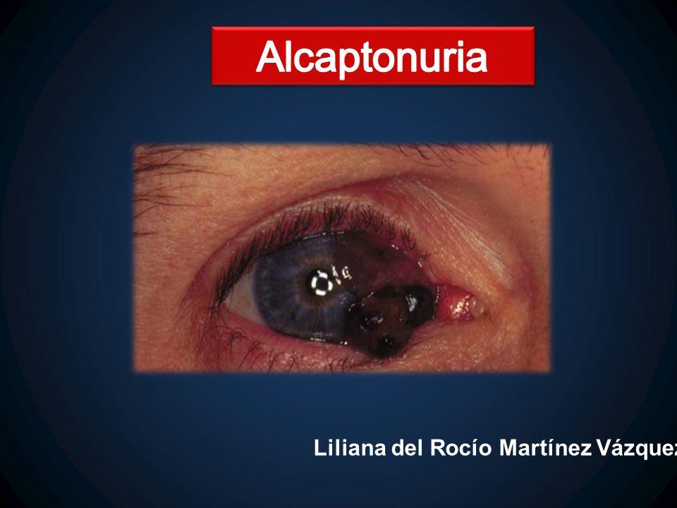 La pigmentación del ojo usualmente es encontrada sobre la mitad entre la córnea y el canto interno y externo; en el sitio donde se insertan los músculos rectos.