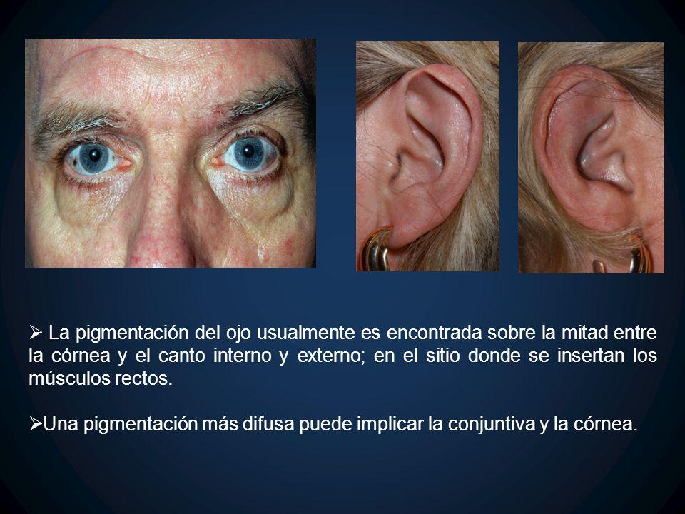 La pigmentación del ojo usualmente es encontrada sobre la mitad entre la córnea y el canto interno y externo; en el sitio donde se insertan los múscul