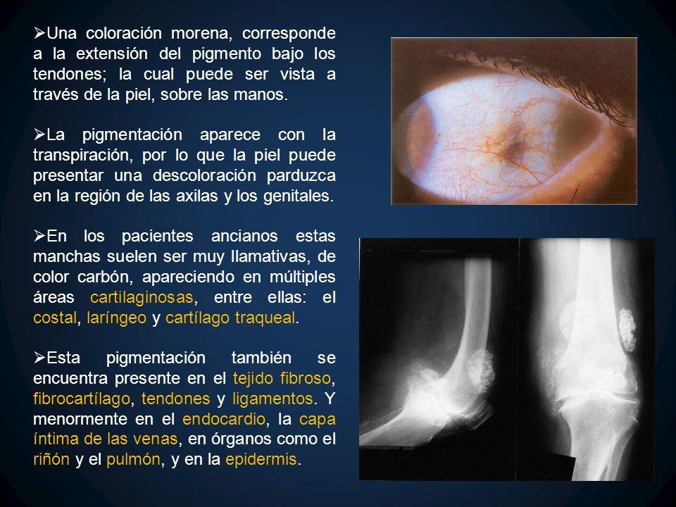 Una coloración morena, corresponde a la extensión del pigmento bajo los tendones; la cual puede ser vista a través de la piel, sobre las manos. La pig