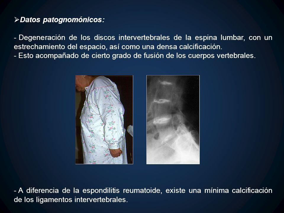 Datos patognomónicos: - Degeneración de los discos intervertebrales de la espina lumbar, con un estrechamiento del espacio, así como una densa calcifi