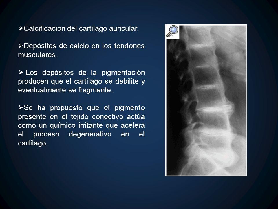 Calcificación del cartílago auricular. Depósitos de calcio en los tendones musculares. Los depósitos de la pigmentación producen que el cartílago se d