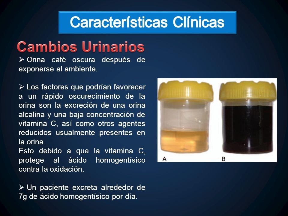 La ocronosis es un trastorno caracterizado por el depósito de un pigmento marrón-negruzco en el tejido conectivo y en el cartílago, como resultado de la acumulación de ácido homogentísico.