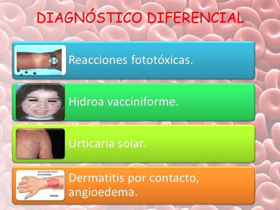 DIAGNÓSTICO DIFERENCIAL Reacciones fototóxicas. Hidroa vacciniforme. Urticaria solar. Dermatitis por contacto, angioedema.
