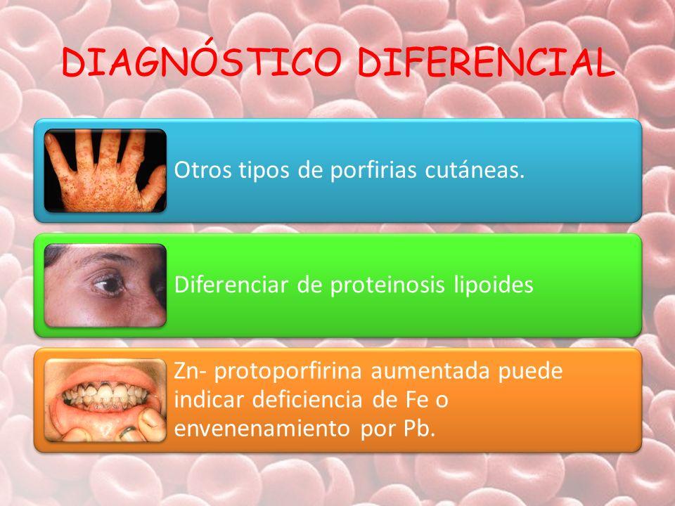 DIAGNÓSTICO DIFERENCIAL Otros tipos de porfirias cutáneas. Diferenciar de proteinosis lipoides Zn- protoporfirina aumentada puede indicar deficiencia