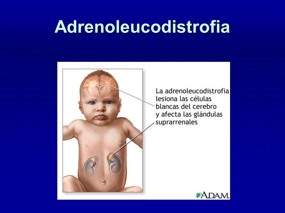 Adrenoleucodistrofia Forma Neonatal: Forma Neonatal: Hipotonía severa progresiva Hipotonía severa progresiva Muerte precoz.