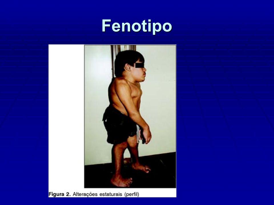 GANGLIOSIDOSIS GM1 Forma Tardía - Edad de aparición variable - Ataxia, disartria y espasticidad como en la parálisis cerebral - No afectación visceral - No facies tosca - No disóstosis multiple - Deterioro clínico lento - Sobreviven hasta la cuarta década de vida