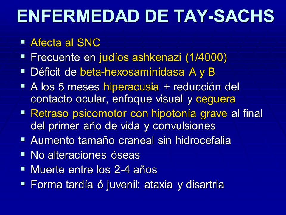 ENFERMEDAD DE TAY-SACHS ENFERMEDAD DE TAY-SACHS Afecta al SNC Afecta al SNC Frecuente en judíos ashkenazi (1/4000) Frecuente en judíos ashkenazi (1/40