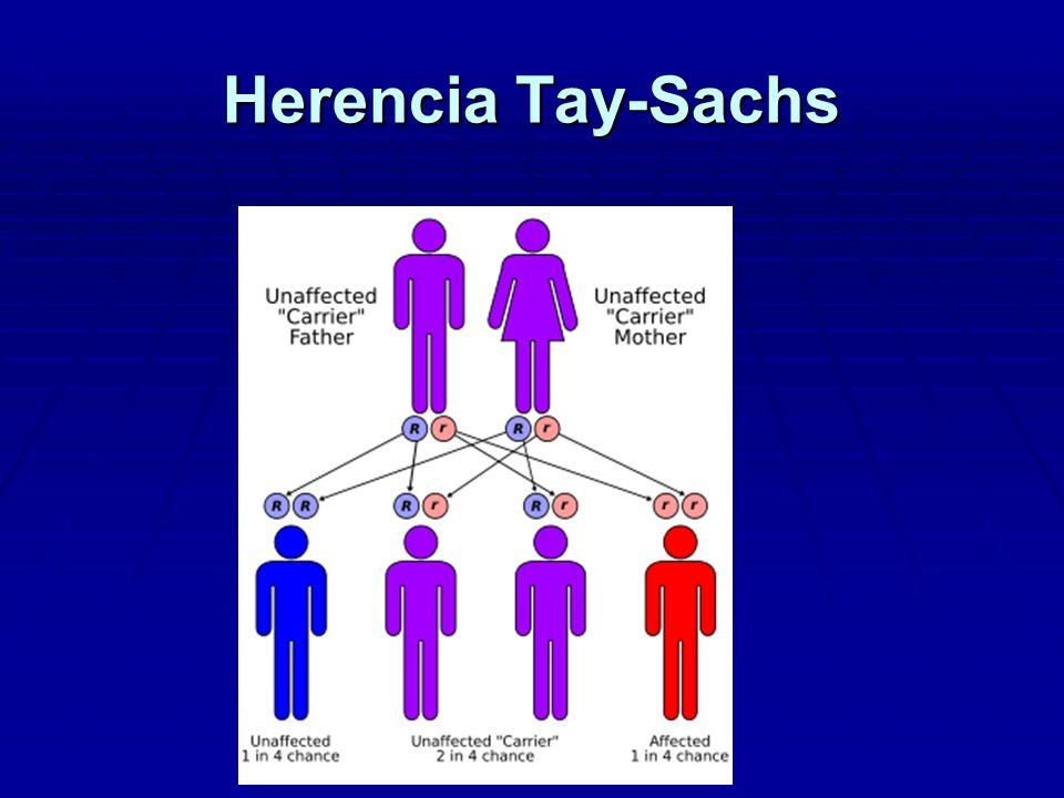 Enfermedad de Tay-Sachs
