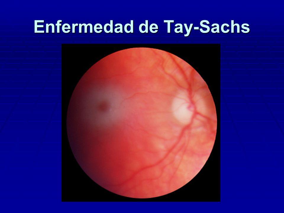 ENFERMEDAD DE TAY-SACHS DIAGNOSTICO - Clínica : retraso grave+ mancha rojo cereza, no hepatoesplenomegalia no hepatoesplenomegalia - Déficit de beta-hexosaminidasa A en plasma, cultivo de fibroblastos cutáneos ó leucocitos - Genética molecular : cromosoma 15 - Diagnóstico prenatal ( 1 de cada 30 son portadores) TRATAMIENTO - No existe
