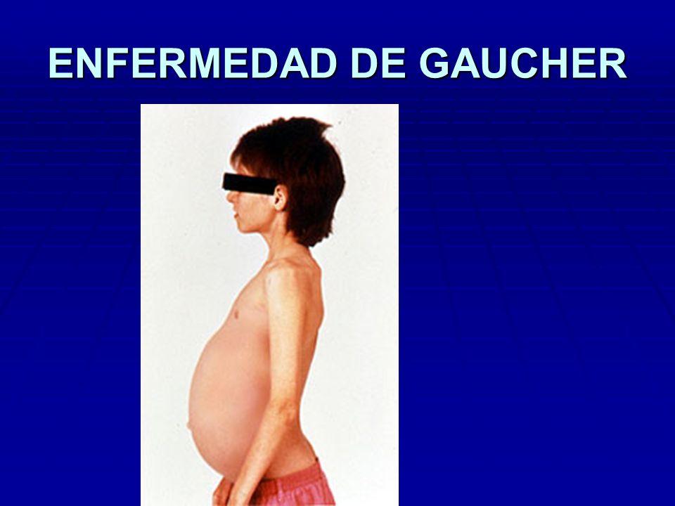 ENFERMEDAD DE GAUCHER