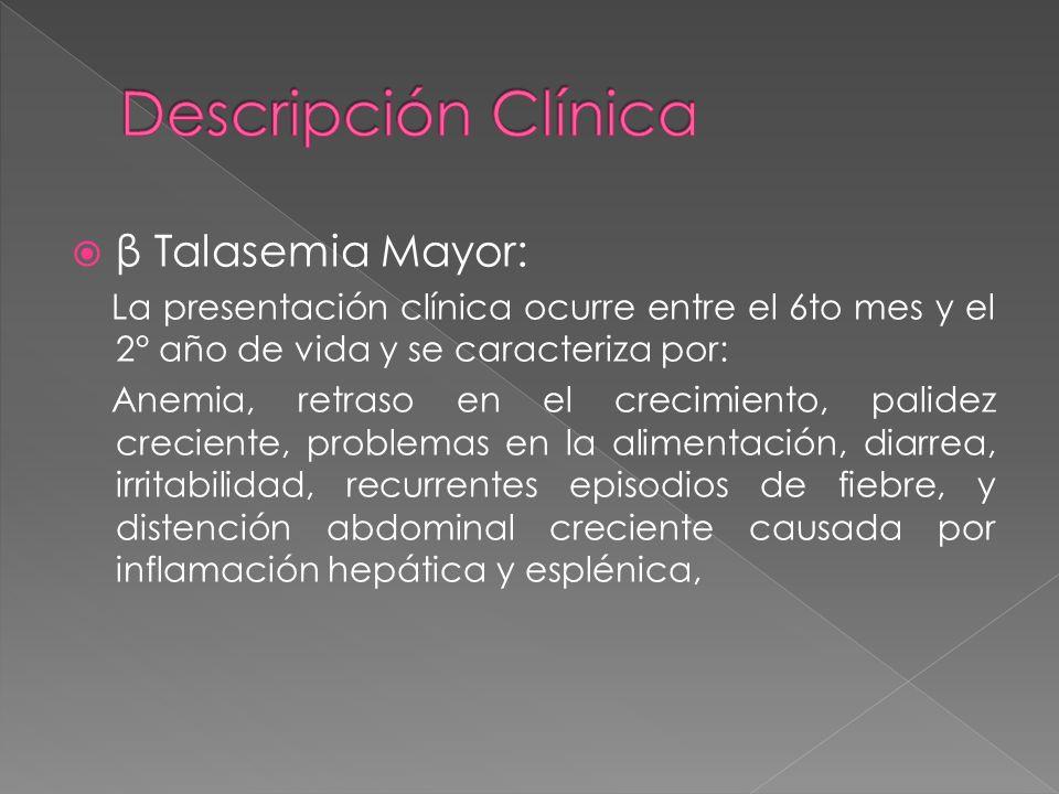 β Talasemia Mayor: La presentación clínica ocurre entre el 6to mes y el 2° año de vida y se caracteriza por: Anemia, retraso en el crecimiento, palide