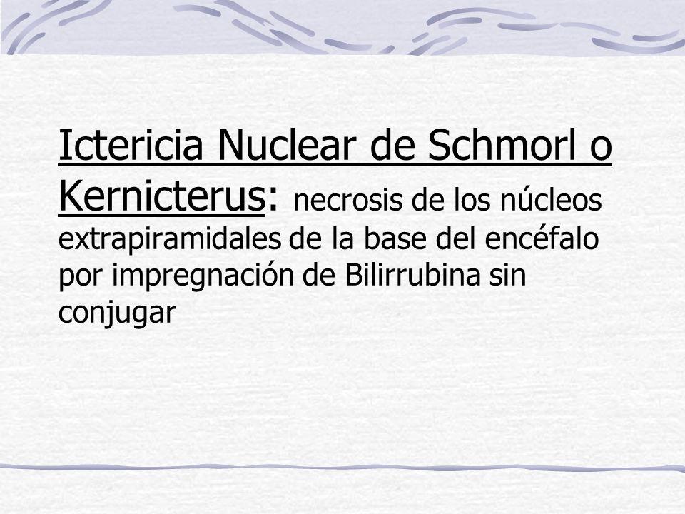 Ictericia Nuclear de Schmorl o Kernicterus: necrosis de los núcleos extrapiramidales de la base del encéfalo por impregnación de Bilirrubina sin conju