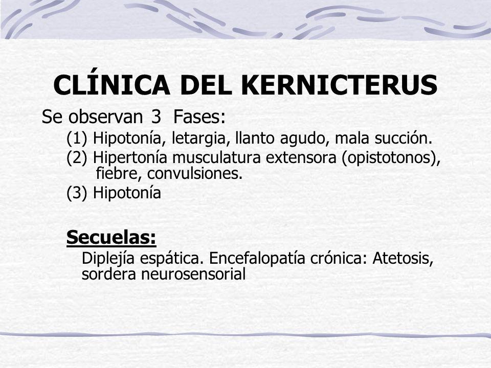 CLÍNICA DEL KERNICTERUS Se observan 3 Fases: (1) Hipotonía, letargia, llanto agudo, mala succión. (2) Hipertonía musculatura extensora (opistotonos),