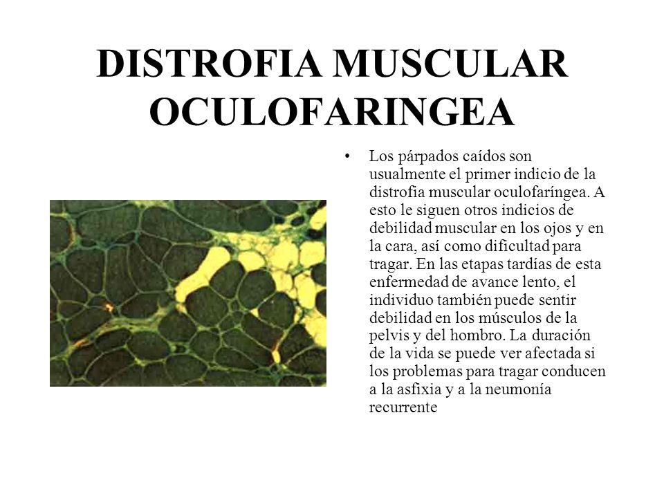 DISTROFIA MUSCULAR OCULOFARINGEA Los párpados caídos son usualmente el primer indicio de la distrofia muscular oculofaríngea. A esto le siguen otros i