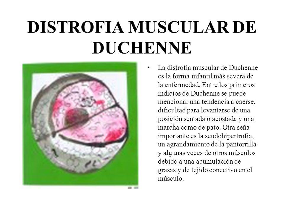 DISTROFIA MUSCULAR DE BECKER Los indicios, los síntomas y el curso de la distrofia muscular de Becker son muy similares a los de distrofia de duchenne.