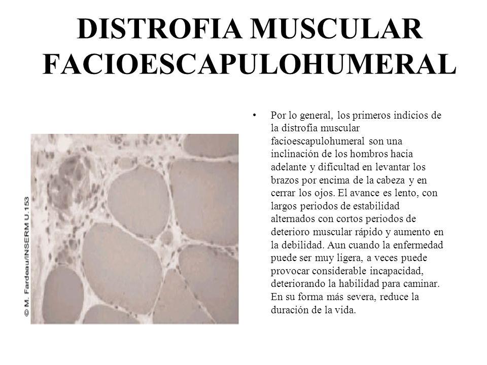 DISTROFIA MUSCULAR CONGENITA La distrofia muscular congénita se caracteriza por una debilidad muscular generalizada, la cual ya se presenta en la infancia.
