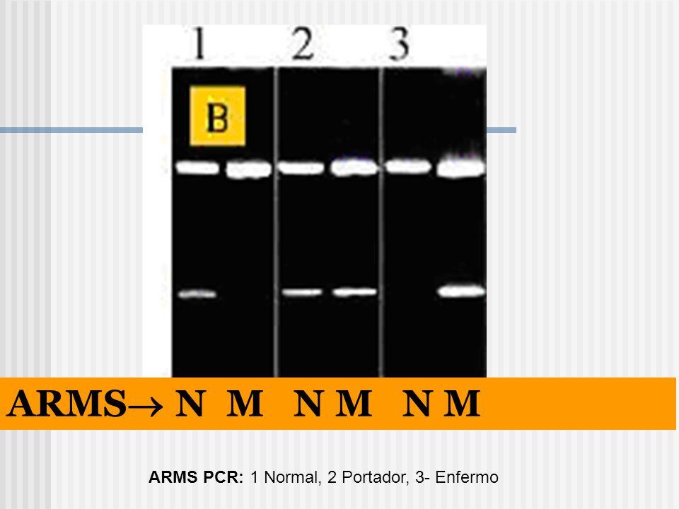 ARMS PCR: 1 Normal, 2 Portador, 3- Enfermo ARMS N M N M N M