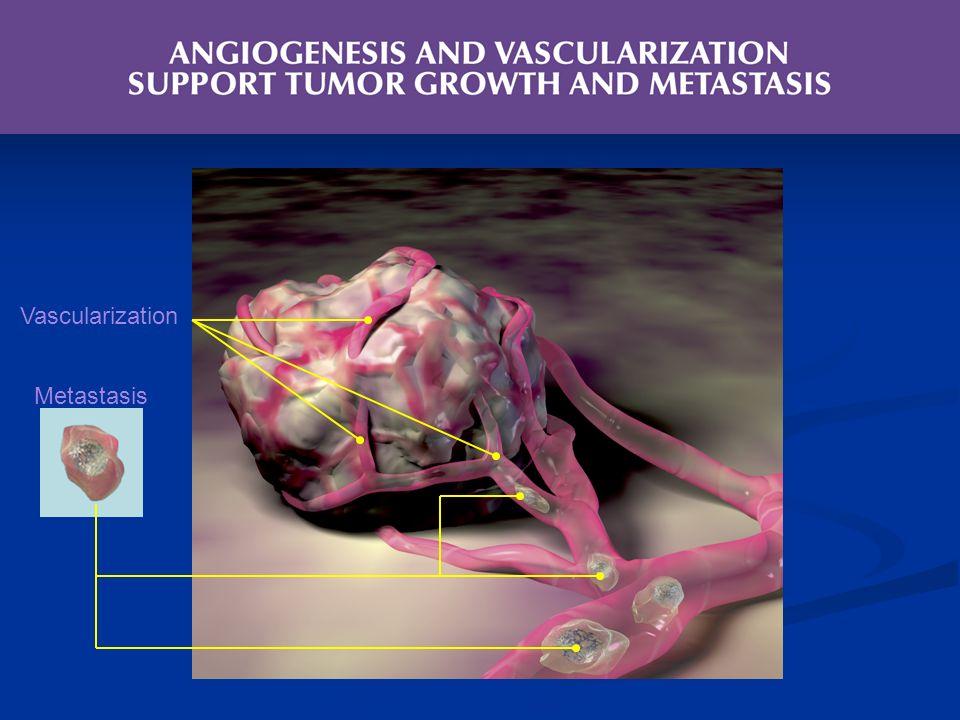 Metastasis Vascularization