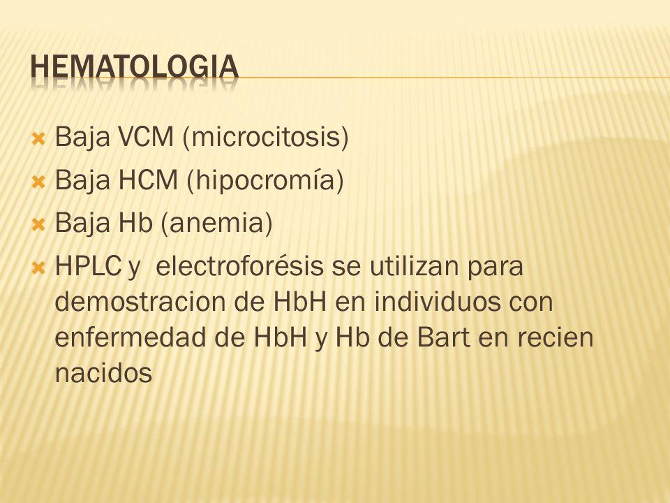 Baja VCM (microcitosis) Baja HCM (hipocromía) Baja Hb (anemia) HPLC y electroforésis se utilizan para demostracion de HbH en individuos con enfermedad