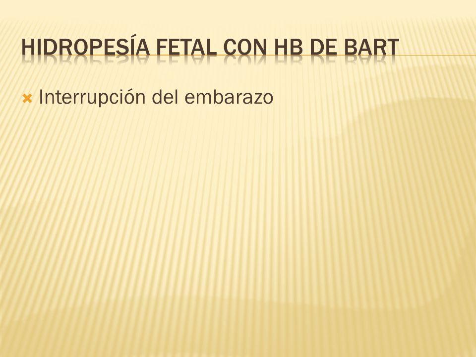 Interrupción del embarazo