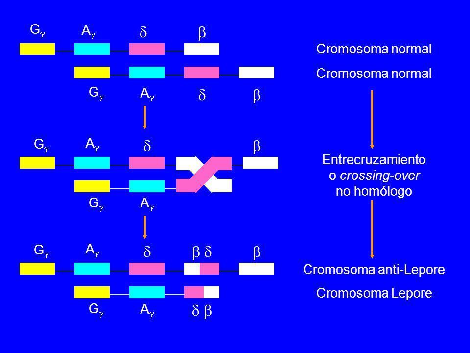 Cromosoma normal Entrecruzamiento o crossing-over no homólogo Cromosoma anti-Lepore Cromosoma Lepore G A G A G A G A G A G A