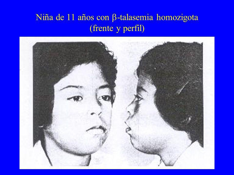 Niña de 11 años con -talasemia homozigota (frente y perfil)