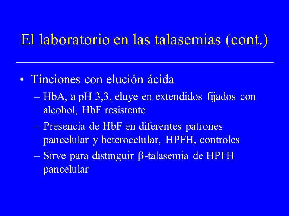 El laboratorio en las talasemias (cont.) Tinciones con elución ácida –HbA, a pH 3,3, eluye en extendidos fijados con alcohol, HbF resistente –Presenci