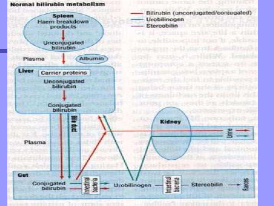 Sindrome de Crigler-Najjar n Asociado a deficiencia en la actividad de la UDP-Glucuroniltransferasa.