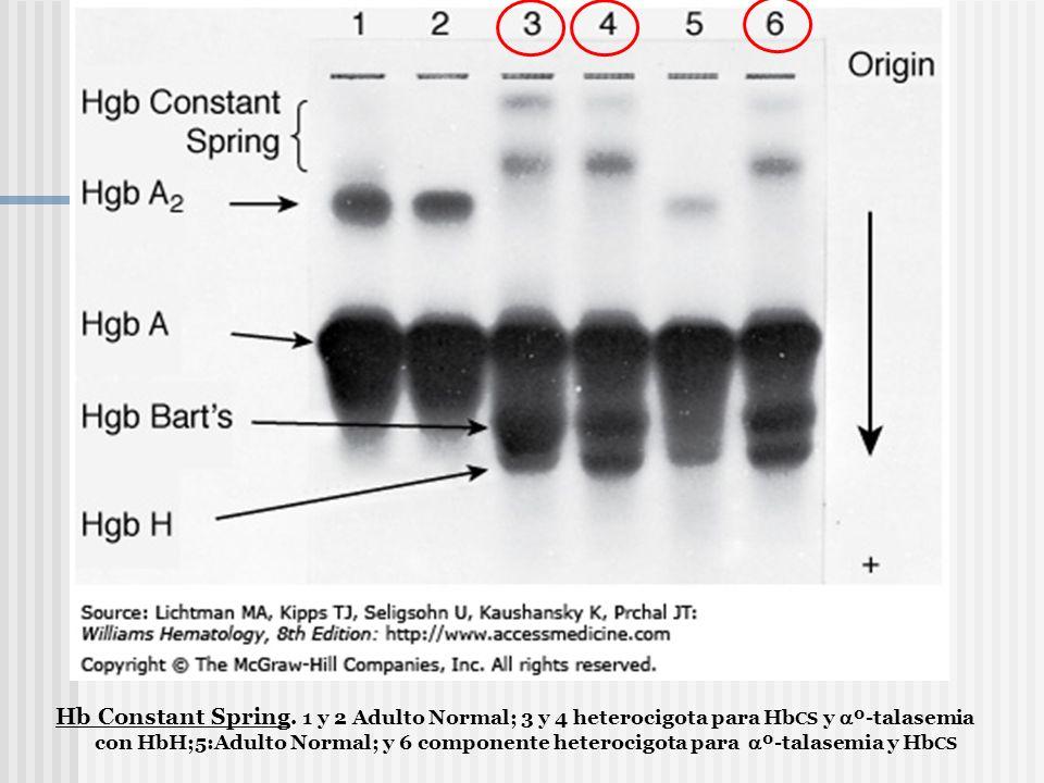 Hb Constant Spring. 1 y 2 Adulto Normal; 3 y 4 heterocigota para Hb CS y º-talasemia con HbH;5:Adulto Normal; y 6 componente heterocigota para º-talas