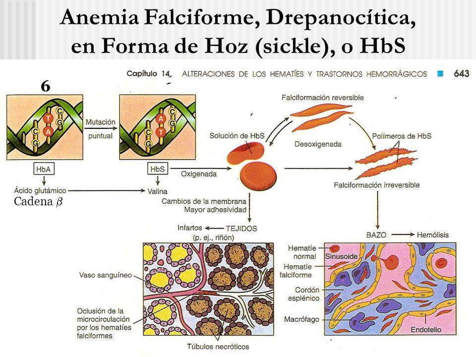Anemia Falciforme, Drepanocítica, en Forma de Hoz (sickle), o HbS 6 Cadena