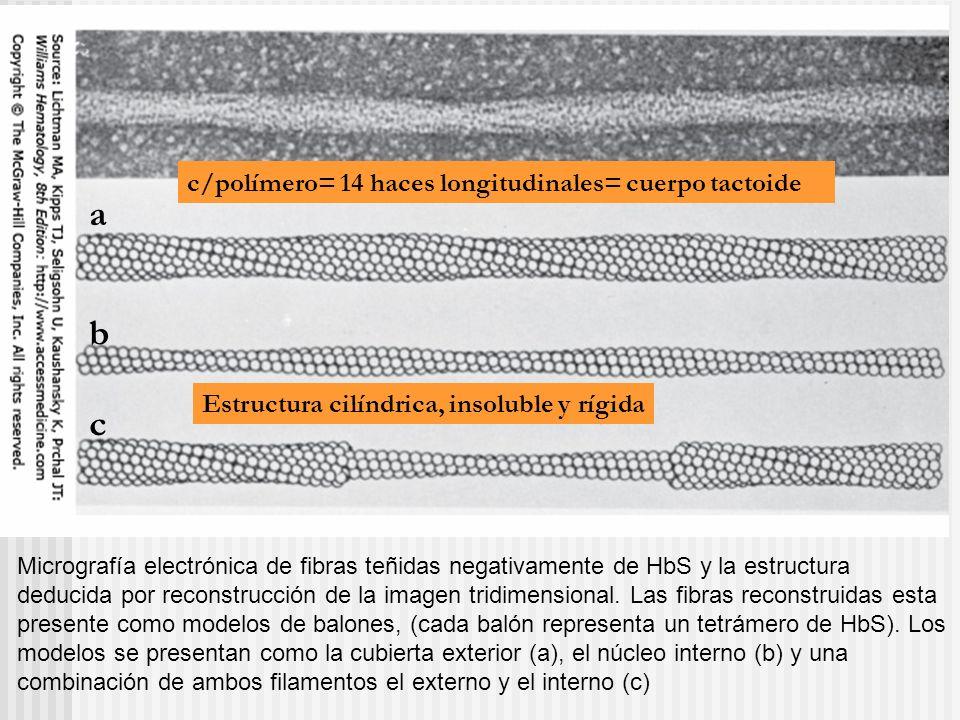 Micrografía electrónica de fibras teñidas negativamente de HbS y la estructura deducida por reconstrucción de la imagen tridimensional. Las fibras rec