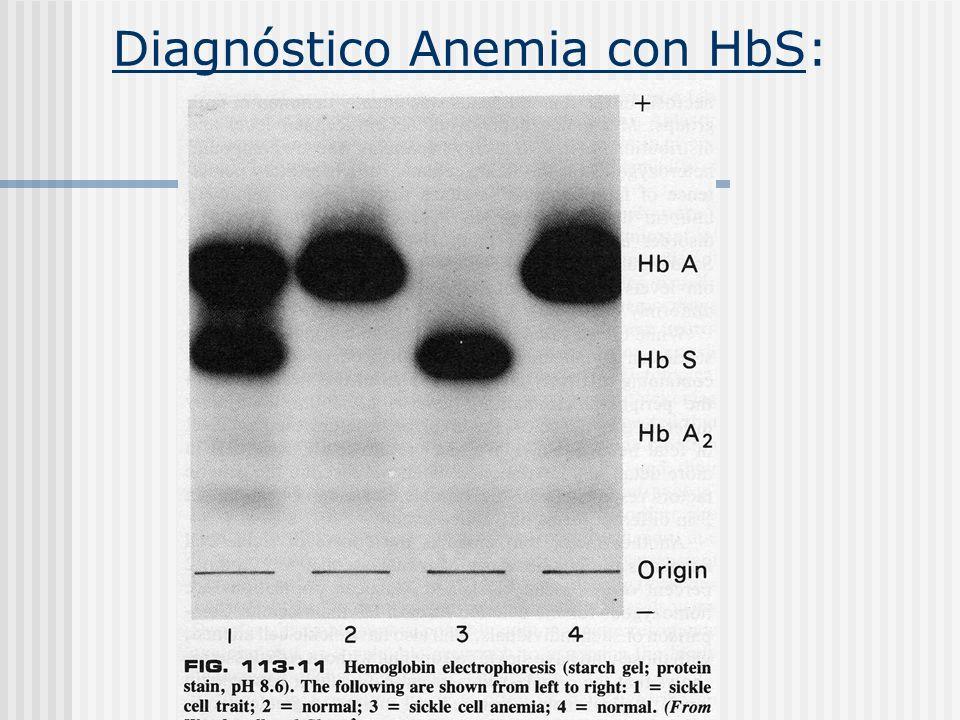 Diagnóstico Anemia con HbS: