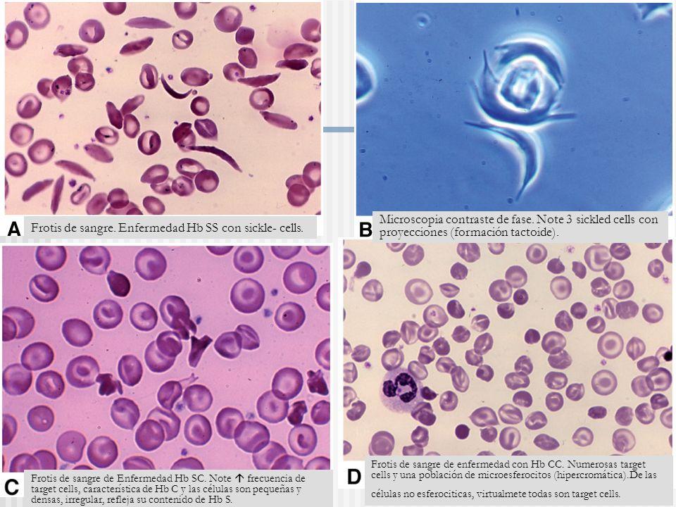Frotis de sangre.Enfermedad Hb SS con sickle- cells.