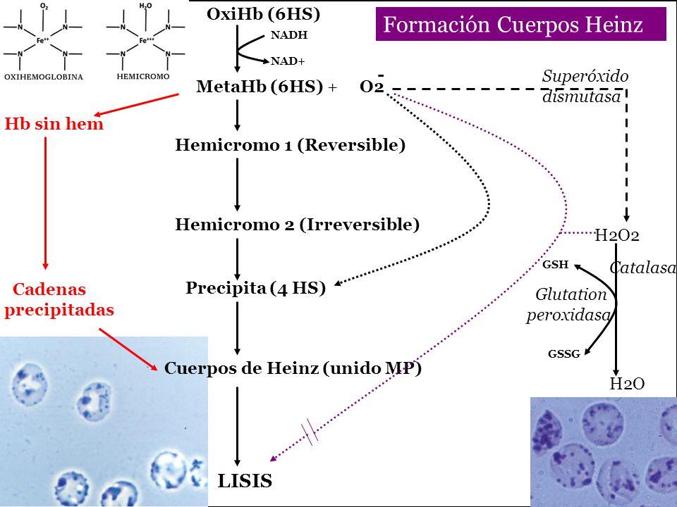 R I OxiHb (6HS) Hemicromo 1 (Reversible) Hemicromo 2 (Irreversible) Precipita (4 HS) LISIS Hb sin hem Cadenas precipitadas NADH NAD+ H2O2 H2O Superóxido dismutasa Glutation peroxidasa GSH GSSG Formación Cuerpos Heinz Cuerpos de Heinz (unido MP) MetaHb (6HS) + O2 Catalasa -