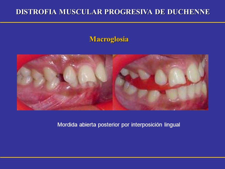 DISTROFIA MUSCULAR PROGRESIVA DE DUCHENNE Macroglosia Mordida abierta posterior por interposición lingual