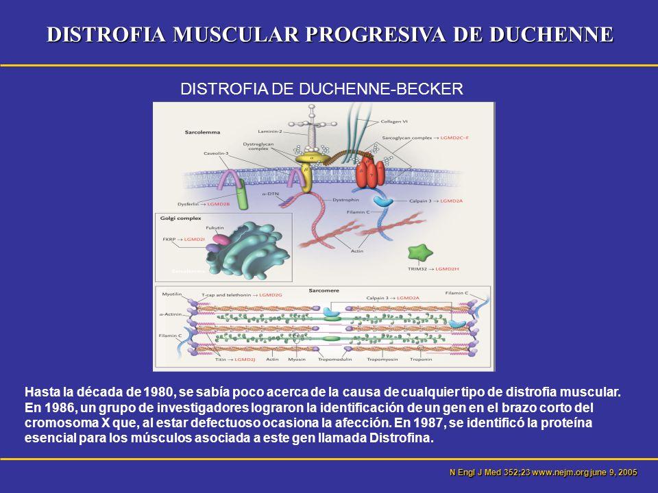 DISTROFIA MUSCULAR PROGRESIVA DE DUCHENNE DISTROFIAS MUSCULARES Miopatías más frecuentes Causa genética.