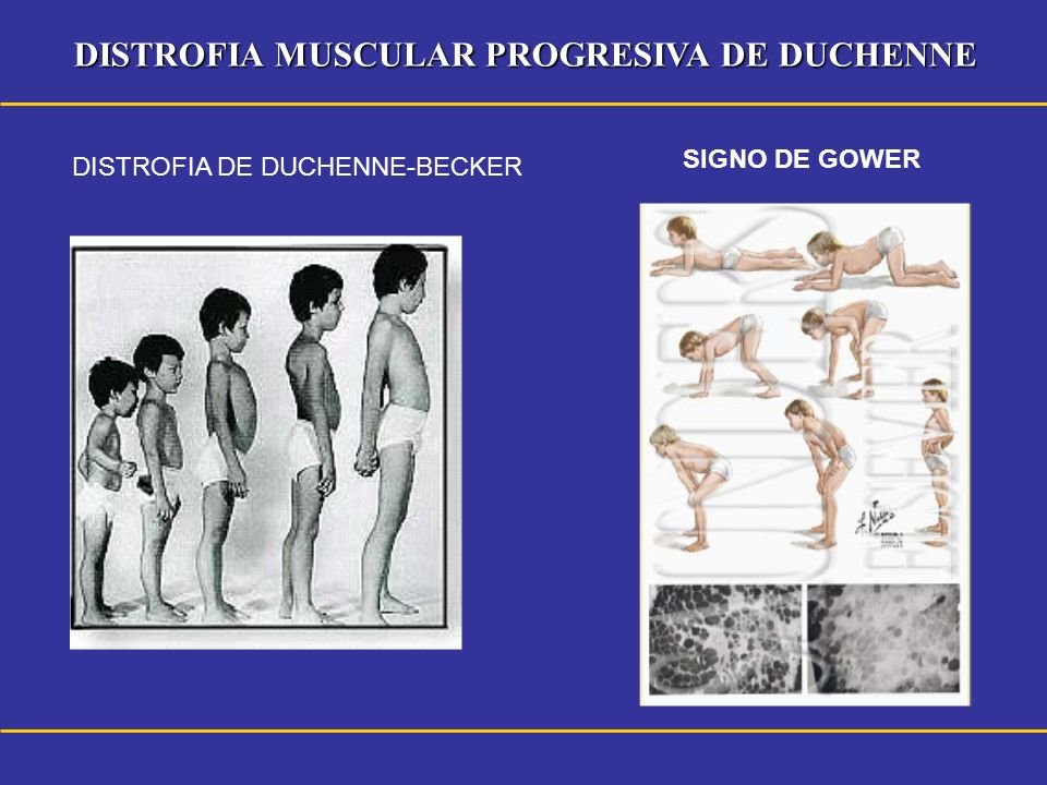 DISTROFIA MUSCULAR PROGRESIVA DE DUCHENNE SIGNO DE GOWER DISTROFIA DE DUCHENNE-BECKER