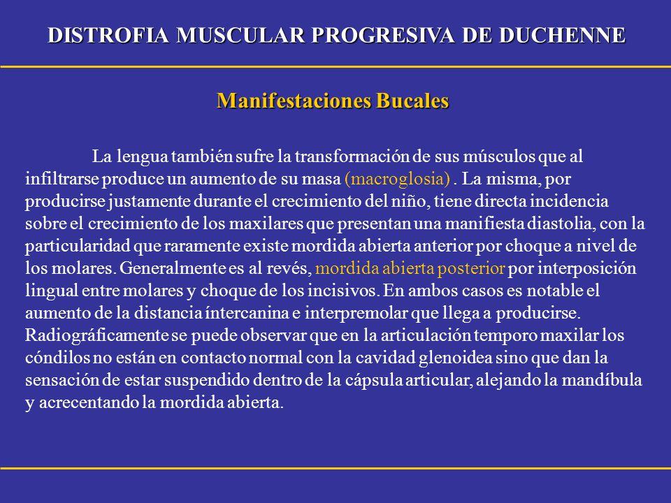 DISTROFIA MUSCULAR PROGRESIVA DE DUCHENNE Técnicas de glosectomía 1.
