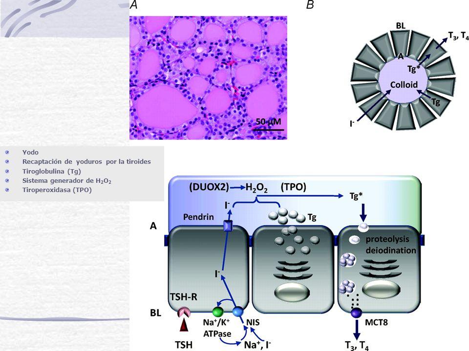 Defectos Genéticos de la Tiroglobulina El perfil bioquímico de los pacientes, por lo general, se caracteriza por: una alta captación de 131 -I, descarga de perclorato negativa (N), baja TG sérica y TSH con T4 baja y T3 normal o alta.