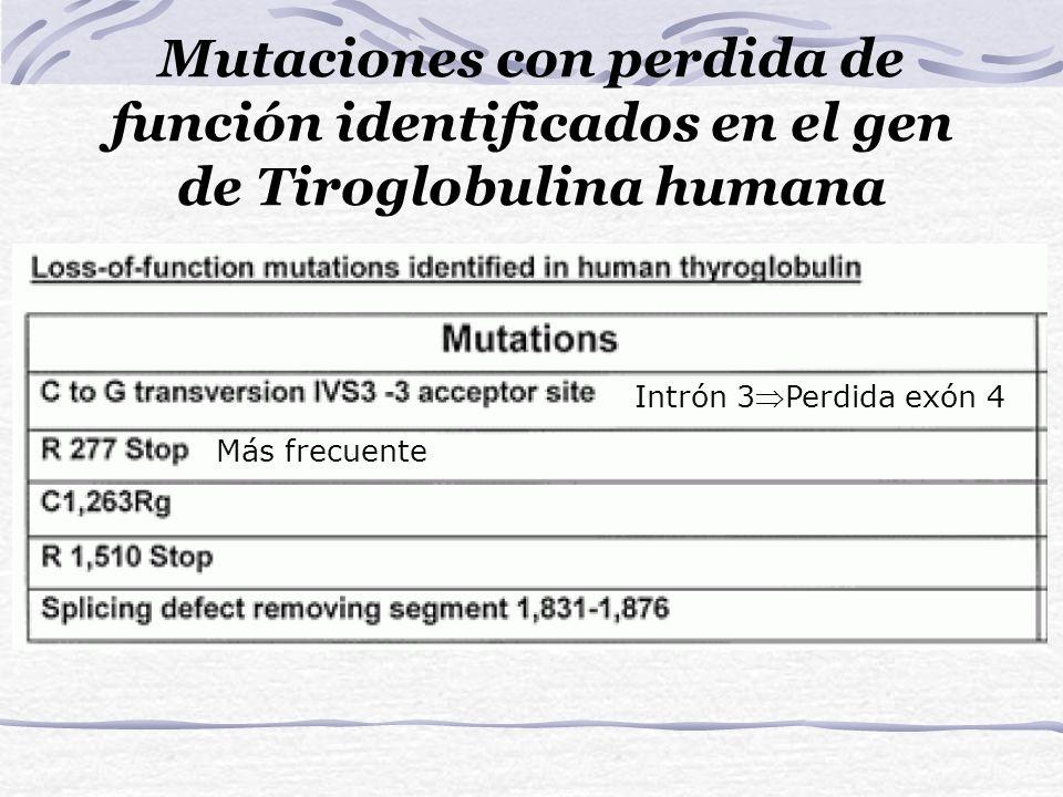 Mutaciones con perdida de función identificados en el gen de Tiroglobulina humana Intrón 3Perdida exón 4 Más frecuente