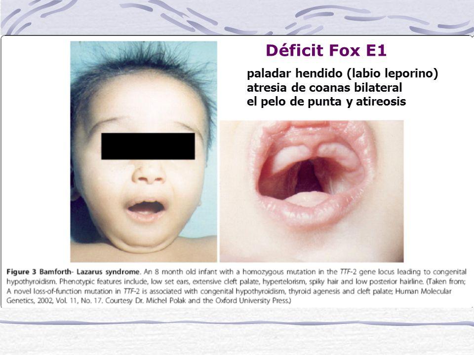 Déficit Fox E1 paladar hendido (labio leporino) atresia de coanas bilateral el pelo de punta y atireosis