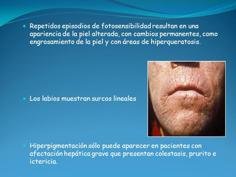 Repetidos episodios de fotosensibilidad resultan en una apariencia de la piel alterada, con cambios permanentes, como engrosamiento de la piel y con á