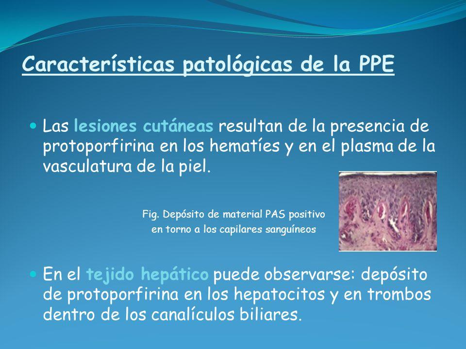 Características patológicas de la PPE Las lesiones cutáneas resultan de la presencia de protoporfirina en los hematíes y en el plasma de la vasculatur