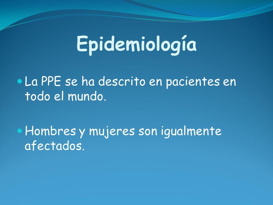 Epidemiología La PPE se ha descrito en pacientes en todo el mundo. Hombres y mujeres son igualmente afectados.