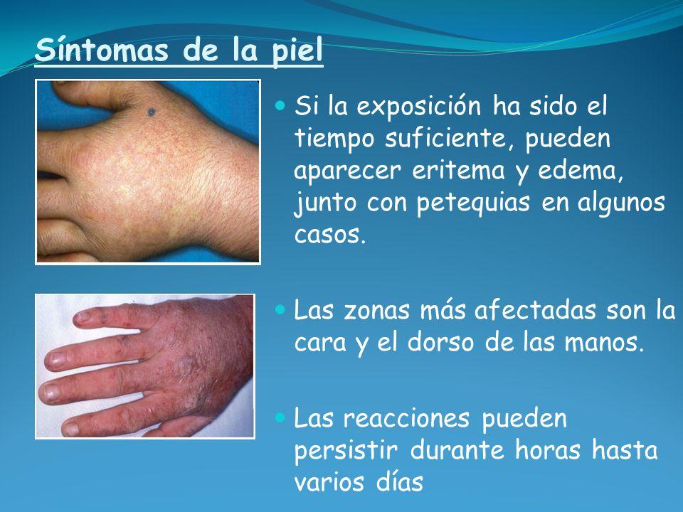 Síntomas de la piel Si la exposición ha sido el tiempo suficiente, pueden aparecer eritema y edema, junto con petequias en algunos casos. Las zonas má