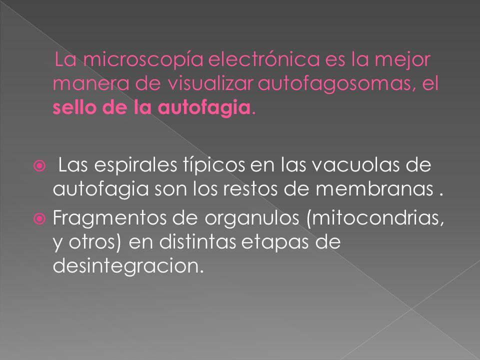 La microscopía electrónica es la mejor manera de visualizar autofagosomas, el sello de la autofagia. Las espirales típicos en las vacuolas de autofagi