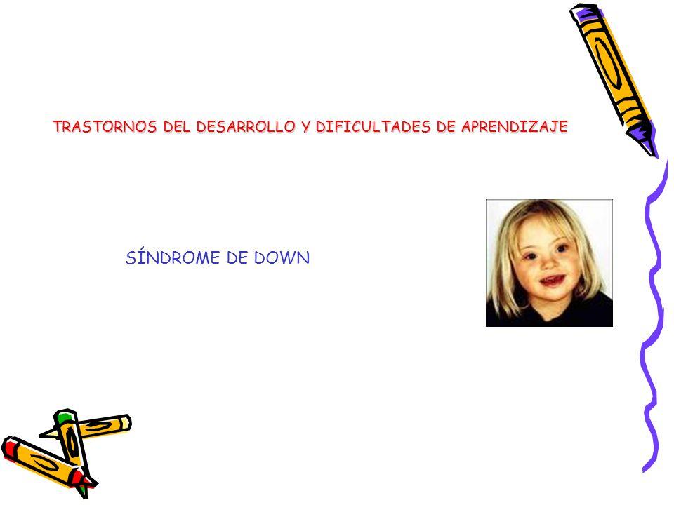 SÍNDROME DE DOWN TRASTORNOS DEL DESARROLLO Y DIFICULTADES DE APRENDIZAJE