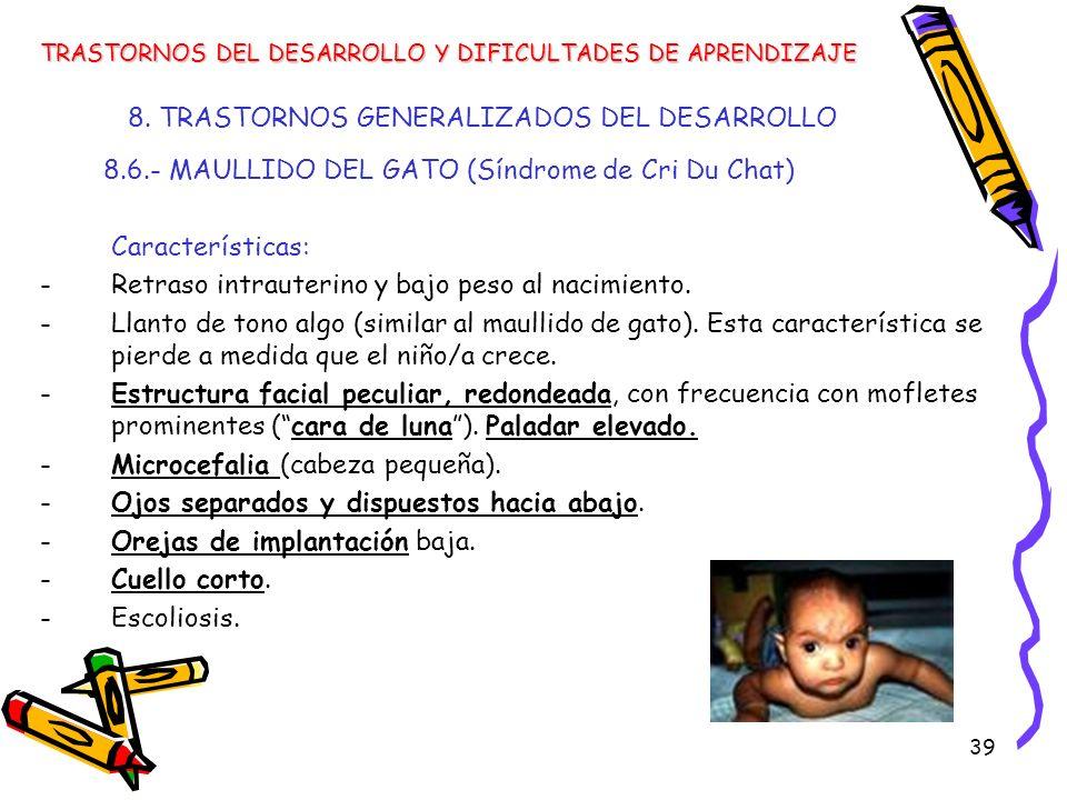 39 8. TRASTORNOS GENERALIZADOS DEL DESARROLLO 8.6.- MAULLIDO DEL GATO (Síndrome de Cri Du Chat) Características: -Retraso intrauterino y bajo peso al