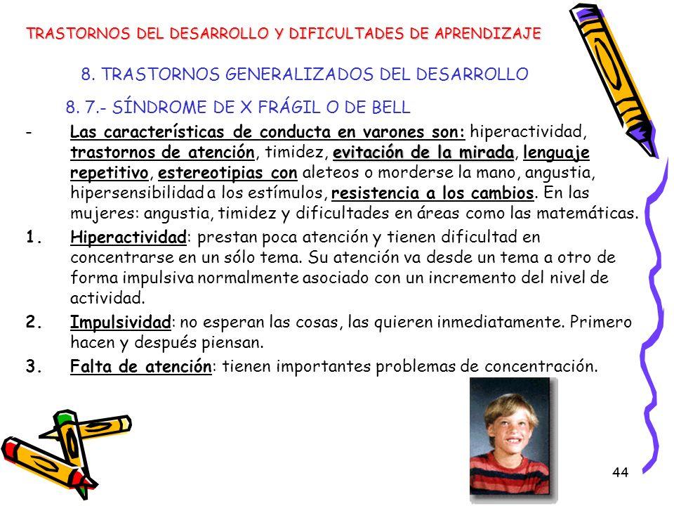 44 8. TRASTORNOS GENERALIZADOS DEL DESARROLLO 8. 7.- SÍNDROME DE X FRÁGIL O DE BELL evitación de la mirada -Las características de conducta en varones