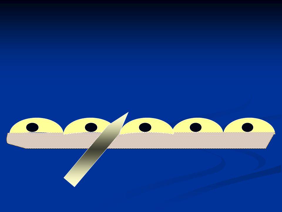 Anticoagulante Lúpico (AL) Prolongación de Pruebas de Coagulación dTTI Inhibición de Tromboplastina Tisular diluida KCT Tiempo de Coagulación con Kaolin dRVVT Tiempo de Veneno de Vívora de Russell Pruebas para diagnóstico
